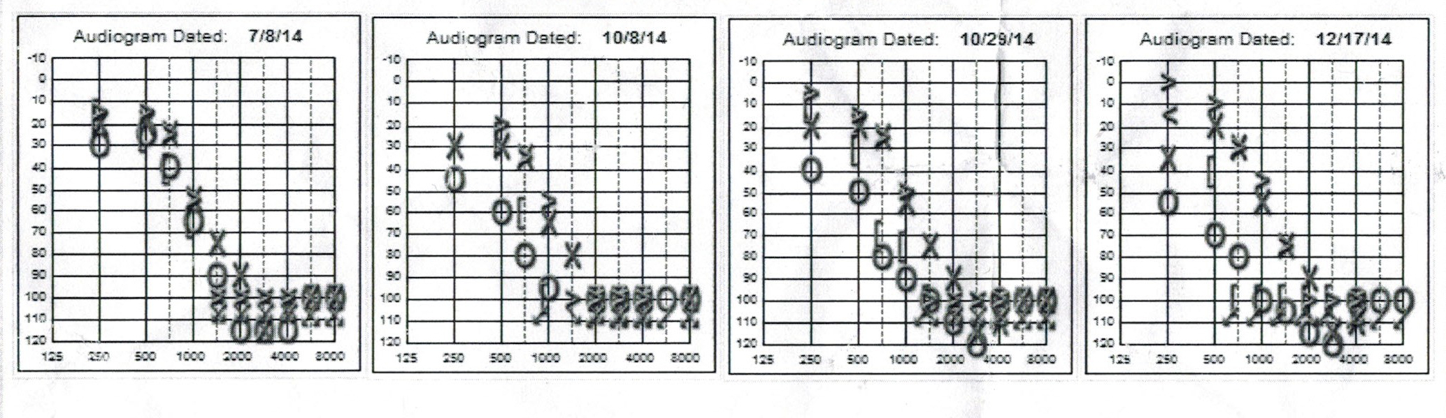 My Hearing Test CI Pre-Op and Post-Op Comparison
