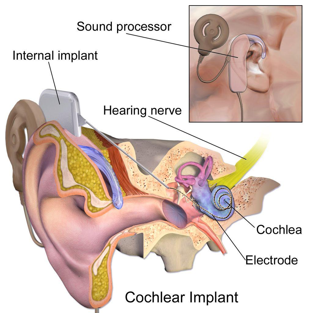 Vertigo from Cochlear Implants (CI) – Cochlear Implants